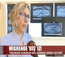 TV interviews, ATV, Ana Haber, Bas Agrisi Tedavisi, Dr. Emel Gokmen
